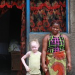 Believe: a girl whose albinism won't stop her from going to school