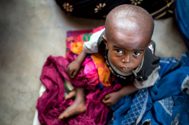 severe acute malnutrition in the Greater Kasaï