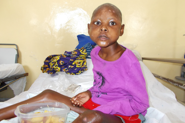 malnutrition in North Kivu