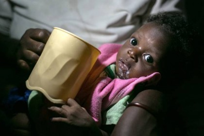 Through my lens: the fight against malnutrition