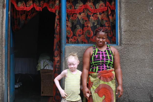 Believe : une petite fille dont l'albinisme ne l'empêchera pas d'aller à l'école