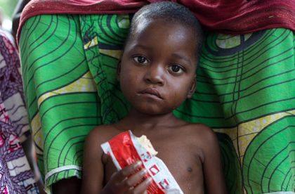 Aliments thérapeutiques : certains profitent du malheur des enfants pour s'enrichir